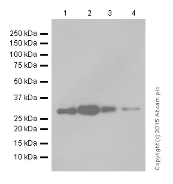 Western blot - Anti-Bcl10 antibody [EP606Y] (ab33905)