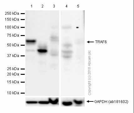 Western blot - Anti-TRAF6 antibody [EP591Y] (ab33915)