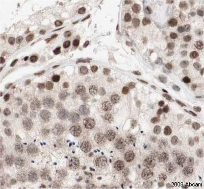 Immunohistochemistry (Formalin/PFA-fixed paraffin-embedded sections) - Anti-NCAPD2 antibody (ab34338)