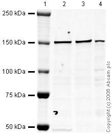 Western blot - Anti-NCAPD2 antibody (ab34338)