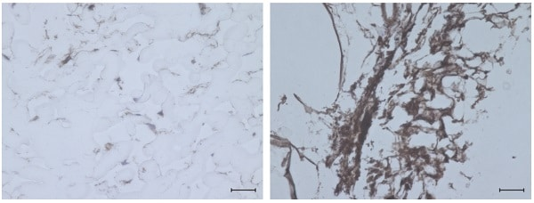 Immunohistochemistry (Formalin/PFA-fixed paraffin-embedded sections) - Anti-Collagen II antibody (ab34712)