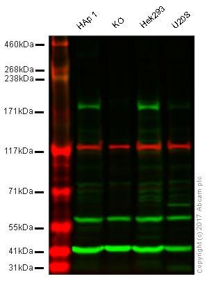 Western blot - Anti-KDM5C / Jarid1C / SMCX antibody (ab34718)