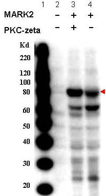 Western blot - Anti-MARK2 (phospho T595) antibody (ab34751)