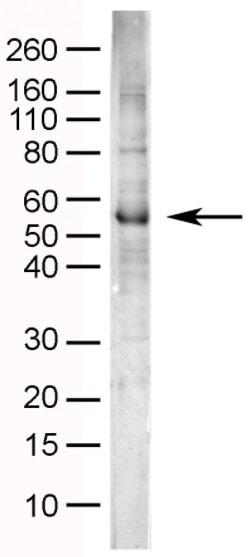 Western blot - Anti-NPY1R antibody (ab35336)