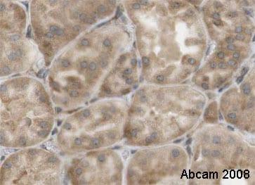 Immunohistochemistry (Formalin/PFA-fixed paraffin-embedded sections) - Anti-EBP1 antibody (ab35424)