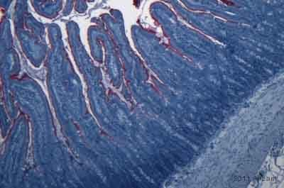 Immunohistochemistry (Formalin/PFA-fixed paraffin-embedded sections) - Anti-E. coli LPS antibody [2D7/1] (ab35654)