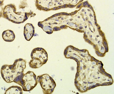 Immunohistochemistry (Formalin/PFA-fixed paraffin-embedded sections) - Anti-SOS1 antibody (ab35702)