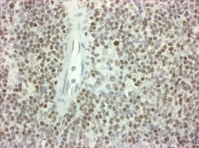 Immunohistochemistry (Formalin/PFA-fixed paraffin-embedded sections) - Anti-RUNX1 / AML1 antibody (ab35962)