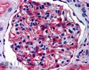 Immunohistochemistry (Formalin/PFA-fixed paraffin-embedded sections) - Anti-AP-A antibody (ab36122)