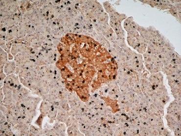 Immunohistochemistry (Formalin/PFA-fixed paraffin-embedded sections) - Anti-Glucagon antibody (ab36232)