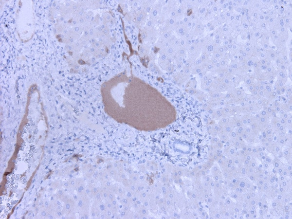 Immunohistochemistry (Formalin/PFA-fixed paraffin-embedded sections) - Anti-C3a / C3a des Arg antibody [K13/16] (ab36385)