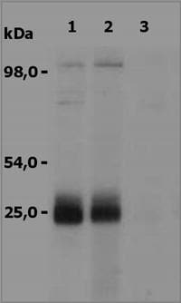 Western blot - Anti-NTAL antibody (ab36452)