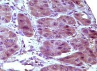 Immunohistochemistry (Formalin/PFA-fixed paraffin-embedded sections) - Anti-Bcl10 antibody [4F8E8H8] (ab36585)