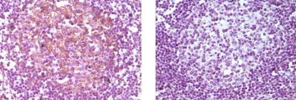 Immunohistochemistry (Formalin/PFA-fixed paraffin-embedded sections) - Anti-CD14 antibody [5A3B11B5] (ab36595)