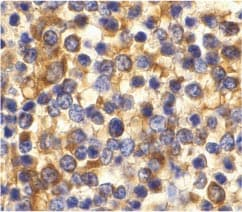 Immunohistochemistry (Formalin/PFA-fixed paraffin-embedded sections) - Anti-CCR3 antibody (ab36827)