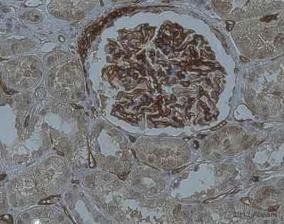 Immunohistochemistry (Formalin/PFA-fixed paraffin-embedded sections) - Anti-H Cadherin antibody (ab36905)
