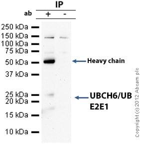 Immunoprecipitation - Anti-UBCH6/UBE2E1 antibody (ab36980)