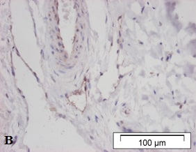 Immunohistochemistry (Formalin/PFA-fixed paraffin-embedded sections) - Anti-LYVE1 antibody (ab36993)