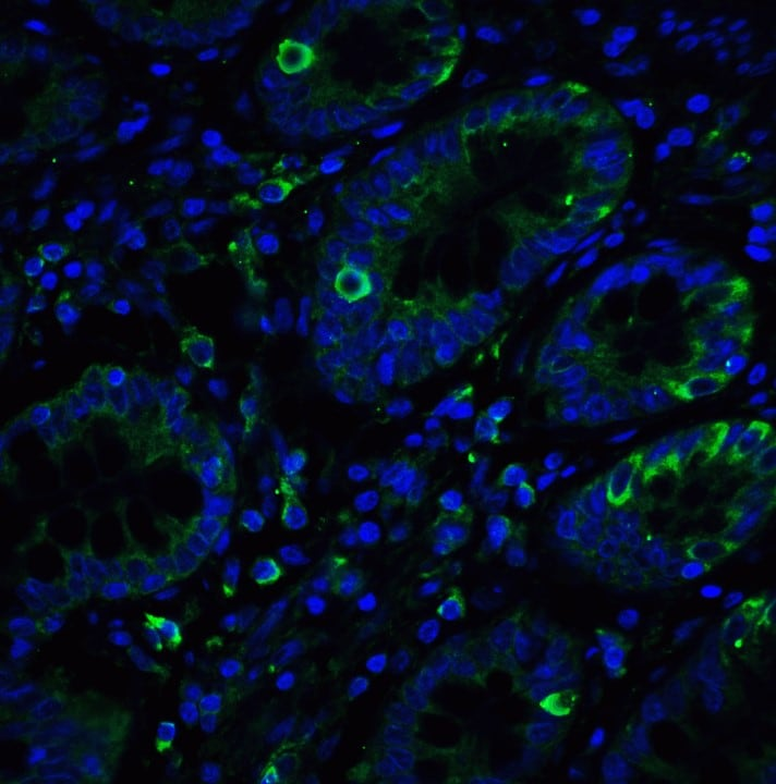 Immunohistochemistry (Formalin/PFA-fixed paraffin-embedded sections) - Anti-IRE1 antibody (ab37073)