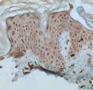 Immunohistochemistry (Formalin/PFA-fixed paraffin-embedded sections) - Anti-XBP1 antibody (ab37152)
