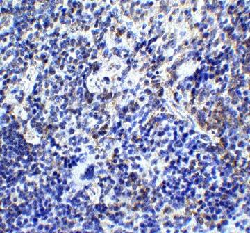 Immunohistochemistry (Formalin/PFA-fixed paraffin-embedded sections) - Anti-TLR9 antibody (ab37154)