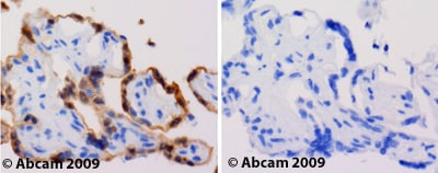 Immunohistochemistry (Formalin/PFA-fixed paraffin-embedded sections) - Anti-Tollip antibody (ab37155)