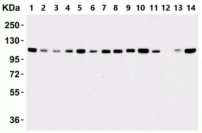 Western blot - Anti-KDM1/LSD1 antibody - Nuclear Marker (ab37165)