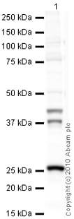 Western blot - Anti-Cathepsin K antibody [3F9] (ab37259)