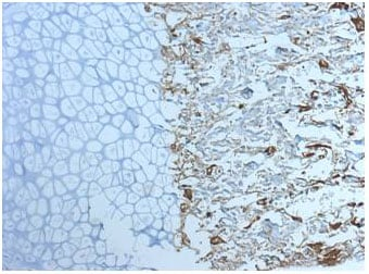 Immunohistochemistry (Formalin/PFA-fixed paraffin-embedded sections) - Anti-Cathepsin K antibody [3F9] (ab37259)