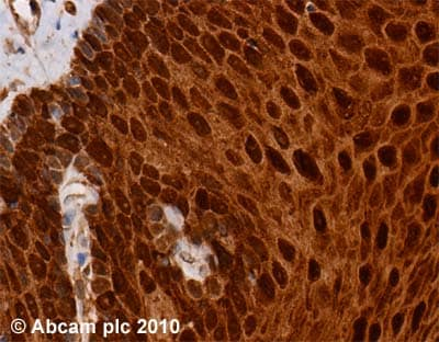 Immunohistochemistry (Formalin/PFA-fixed paraffin-embedded sections) - Anti-FABP5 antibody (ab37267)