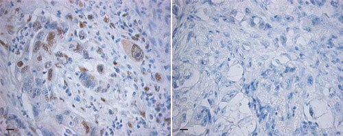 Immunohistochemistry (Formalin/PFA-fixed paraffin-embedded sections) - Anti-BCL9 antibody (ab37305)