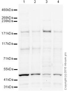 Western blot - Anti-BCL9 antibody (ab37305)