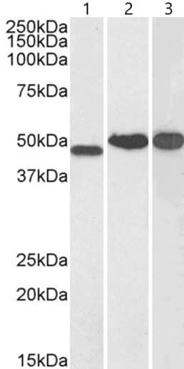 Western blot - Anti-NDRG1 antibody (ab37897)