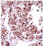 Immunohistochemistry (Formalin/PFA-fixed paraffin-embedded sections) - Anti-CamKII gamma antibody (ab37999)