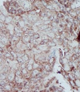 Immunohistochemistry (Formalin/PFA-fixed paraffin-embedded sections) - Anti-PKM antibody (ab38237)
