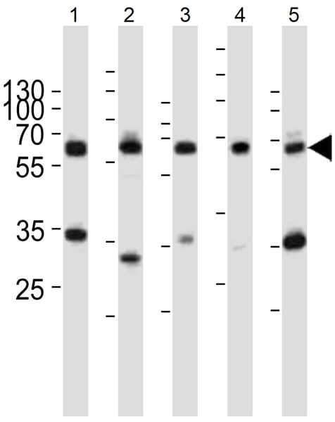 Western blot - Anti-PKM antibody (ab38237)