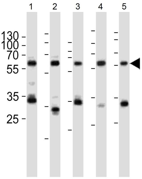 Western blot - Anti-PKM2 antibody (ab38237)