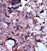 Immunohistochemistry (Formalin/PFA-fixed paraffin-embedded sections) - Anti-PKLR antibody (ab38240)