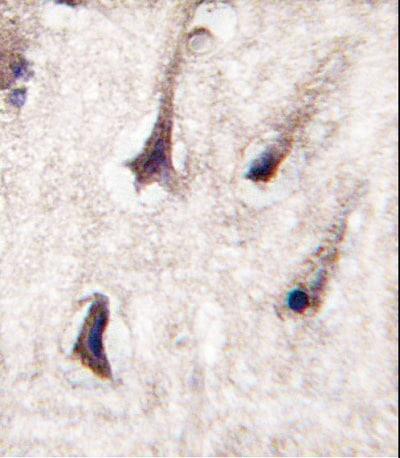 Immunohistochemistry (Formalin/PFA-fixed paraffin-embedded sections) - Anti-PKC beta 2 antibody (ab38279)