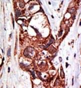 Immunohistochemistry (Formalin/PFA-fixed paraffin-embedded sections) - Anti-SAE1 antibody (ab38434)