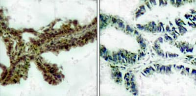 Immunohistochemistry (Formalin/PFA-fixed paraffin-embedded sections) - Anti-AKT (phospho T308) antibody (ab38449)