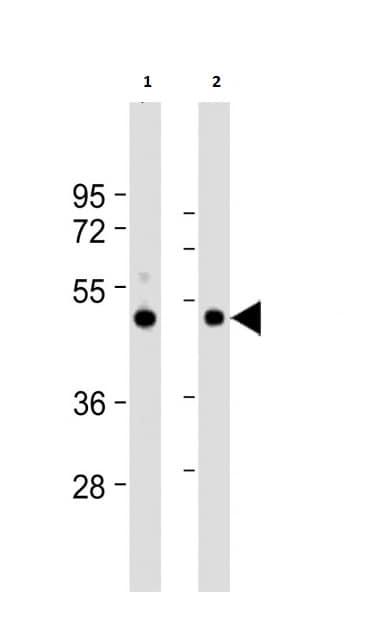 Western blot - Anti-ZMPSTE24 antibody (ab38450)