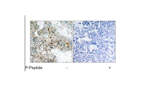 Immunohistochemistry (Formalin/PFA-fixed paraffin-embedded sections) - Anti-Integrin beta 3 (phospho Y773) antibody (ab38460)