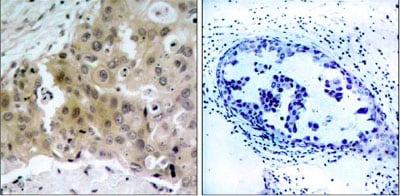 Immunohistochemistry (Formalin/PFA-fixed paraffin-embedded sections) - Anti-VEGF Receptor 2 (phospho Y1175) antibody (ab38464)