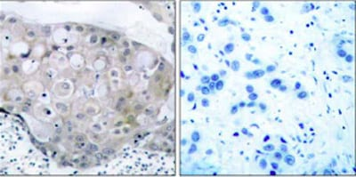 Immunohistochemistry (Formalin/PFA-fixed paraffin-embedded sections) - Anti-VEGF Receptor 2 (phospho Y951) antibody (ab38473)