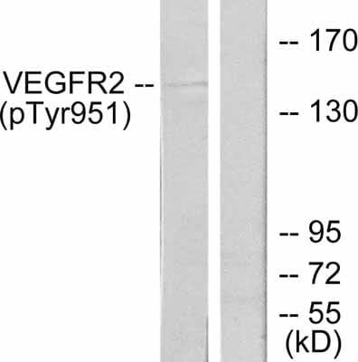 Western blot - Anti-VEGF Receptor 2 (phospho Y951) antibody (ab38473)