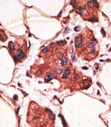 Immunohistochemistry (Formalin/PFA-fixed paraffin-embedded sections) - Anti-MAGEA9 antibody (ab38493)