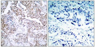 Immunohistochemistry (Formalin/PFA-fixed paraffin-embedded sections) - Anti-p53 (phospho S15) antibody (ab38497)