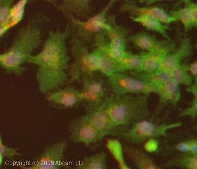 Immunocytochemistry/ Immunofluorescence - Anti-LIMK2 (phospho T505) antibody (ab38499)