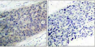 Immunohistochemistry (Formalin/PFA-fixed paraffin-embedded sections) - Anti-LIMK2 (phospho T505) antibody (ab38499)